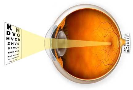 clinica oftalmológica, miopia laser, cirugia de la miopía, lente intraocular, gafas graduadas, gafas baratas, lentes contacto, lentillas, gafas de sol, lentillas baratas