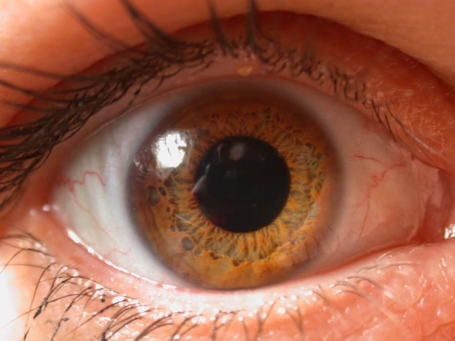 cornea artificial