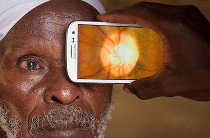 Peek app vision