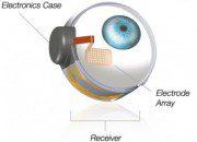 implante retina