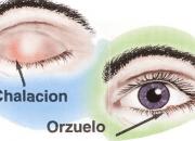 Chalazion orzuelo