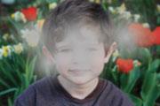 Una visión borrosa o tenue es un síntoma de cataratas.