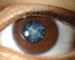 operar cataratas ojos
